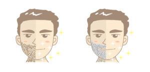 髭剃りビフォーアフター